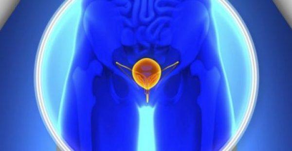 Καρκίνος του προστάτη: Η έρευνα έδειξε ότι οι άνδρες πεθαίνουν από φόβο και… ντροπή