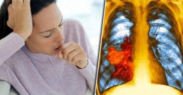 Προσοχή! Ο βήχας και η κόπωση μπορεί να είναι σημάδια καρκίνου του πνεύμονα
