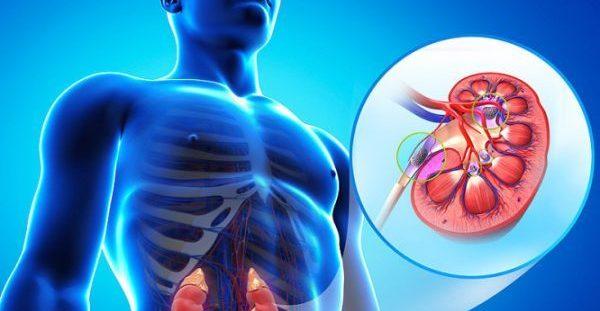 Πέτρες στα νεφρά: Όλα τα συμπτώματα – Πώς θα φύγουν ανώδυνα [vid]