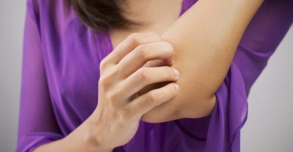 Κουνούπια: Το κόλπο πριν βγείτε έξω για να μην σας τσιμπάνε