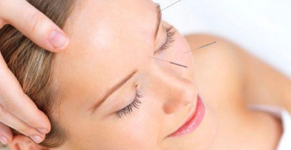 Οι αλλεργίες της άνοιξης μπορούν να αντιμετωπιστούν με βελονισμό