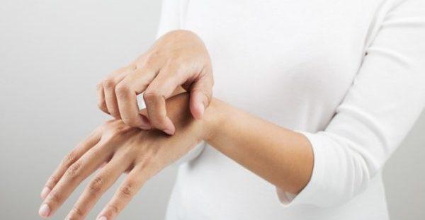 Δερματίτιδα εξ επαφής: Πώς θα προφυλαχθείτε