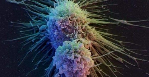 Καρκίνος του πνεύμονα, Συμπτώματα: Ο βήχας και η κόπωση μπορεί να είναι σημάδια