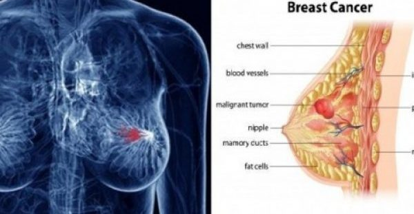 Το πίνουμε καθημερινά, αλλά δεν ξέρουμε ότι προκαλεί καρκίνο του μαστού!