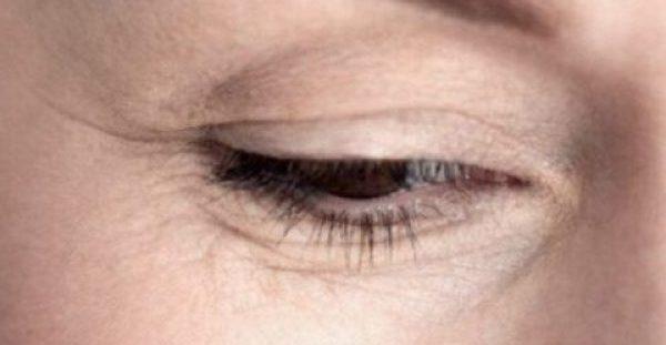 Απαλλαγείτε από τις ρυτίδες στα μάτια